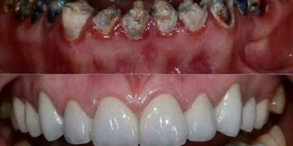 علاج الأسنان مجاناً في الإسكندرية